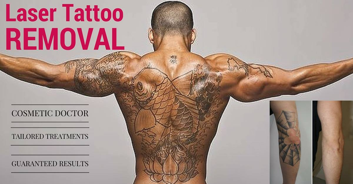 Gold Coast Laser Tattoo & Hair Removal Specialists
