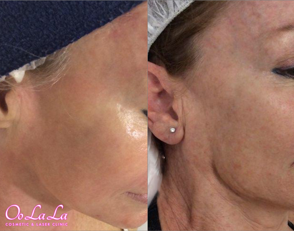 jessner peel and dermapen skin needling