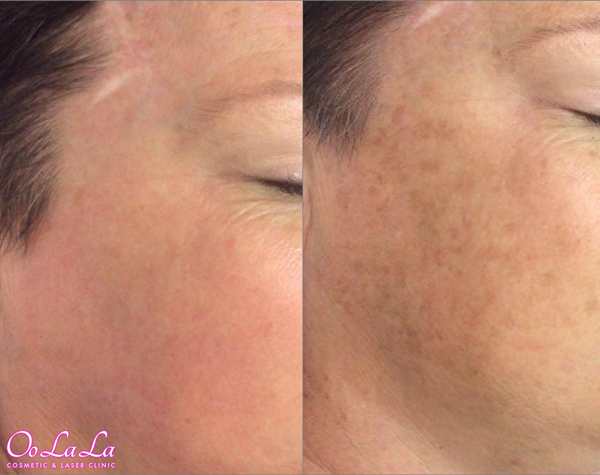tca peel before and after