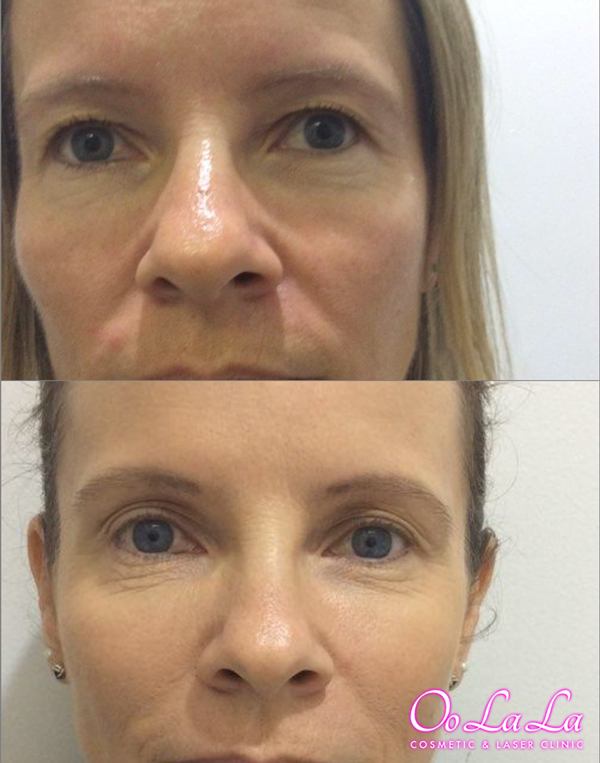 Non surgical eye lid lift before and after