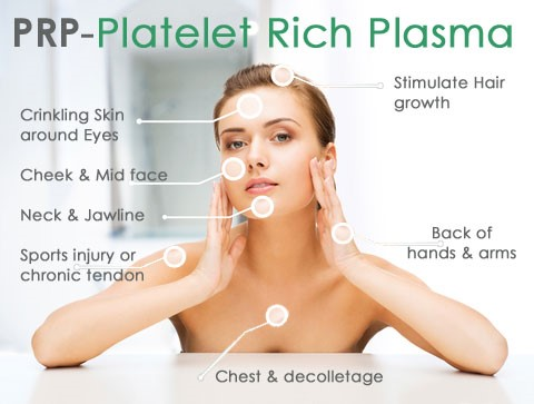Platelet Rich Plasma diagram