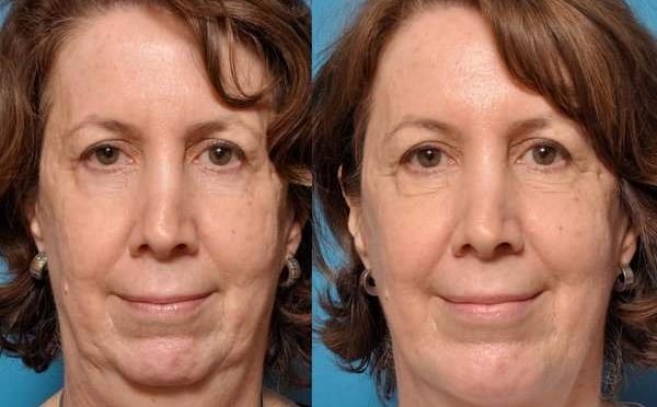 thermal skin tightening Before & After