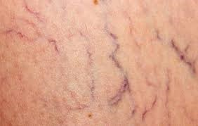 Varicose veins closeup