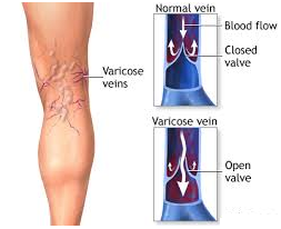 Normal and Varicose veins diagram