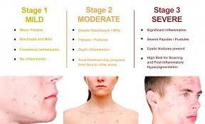 table of acne severity