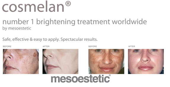 Cosmelan Peel Treatment Results