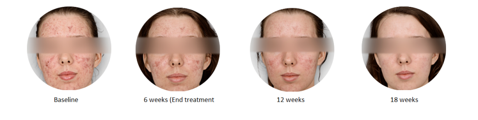 Kleresca Acne Treatment before and after
