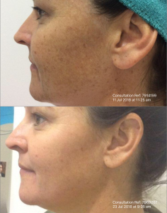 Cosmelan treatment before/after