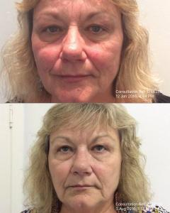 IPL Skin rejuvenation, Anti wrinkle injections, frown lines.