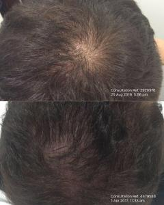 Hair regrowth using PRP therapy.