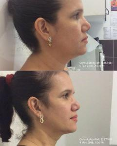 Ultraformer Skin Tightening