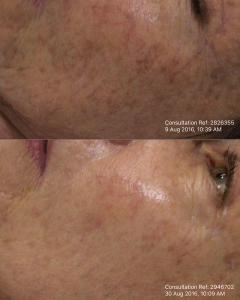 Yellow laser 585 for vascular skin