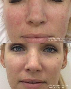 Yellow laser 585 for vascular skin