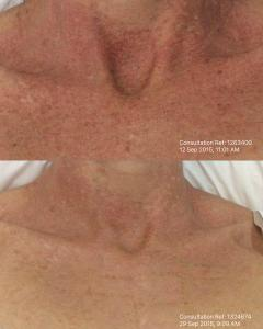IPL Treatment result after just one treatment.