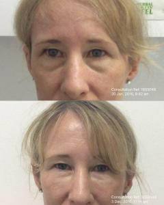 Dermal Fillers Under Eye