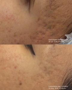 Dermapen skin needling after one treatment.