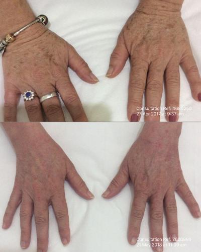IPL-hands