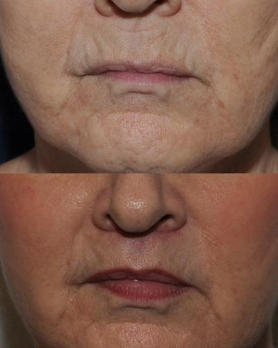 Under nose to redefine top lip